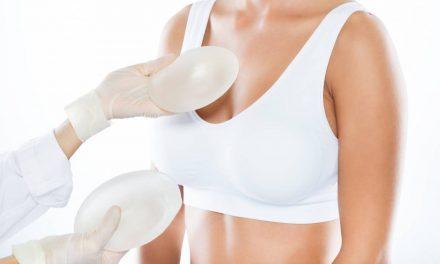 Augmentation mammaire : quel processus et pour quel coût ?
