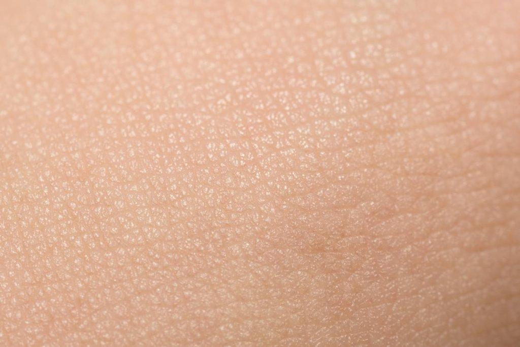 eviter peau de lezard
