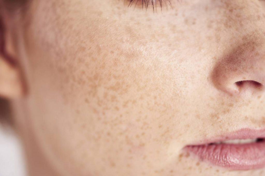 avoir une belle peau